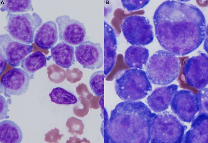Presence of lymphocytes as an infection progresses