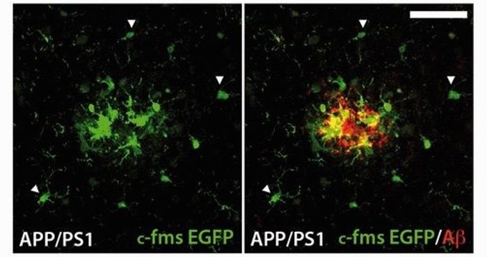 Activated microglia surrounding an amyloid plaque. For full explanation, see figure 3F in Olmos-Alonso, 2016 Brain.
