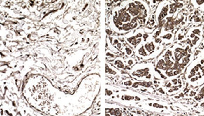 Samples from non-metastatic (left) and metastatic breast cancer (right) cells showing enhanced expression of a specific gene in metastatic tumors because those cells have increased levels of a tRNA called GluUUC.
