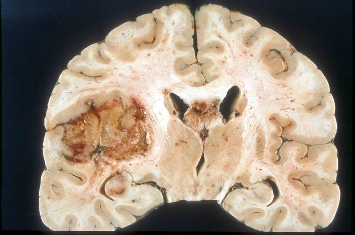 Macroscopic pathology of Glioblastoma multiforme / Credit: Wikimedia Commons / Sbrandner