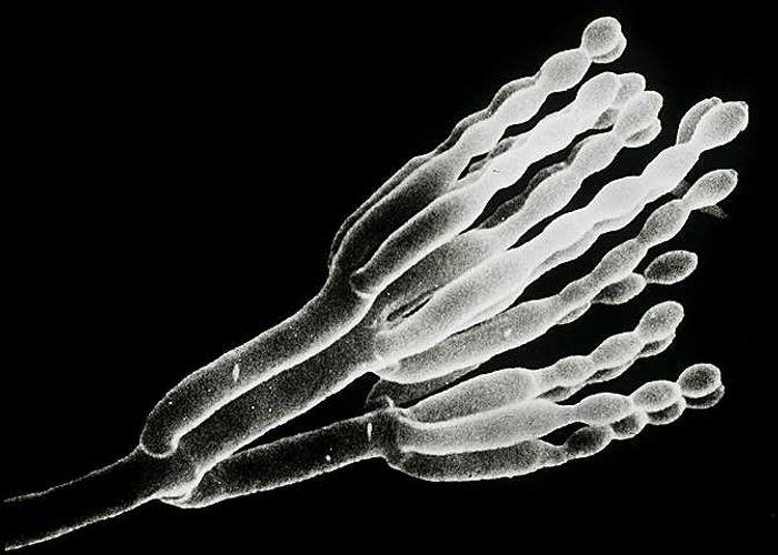 Electron microscopy of Penicillium chrysogenum.