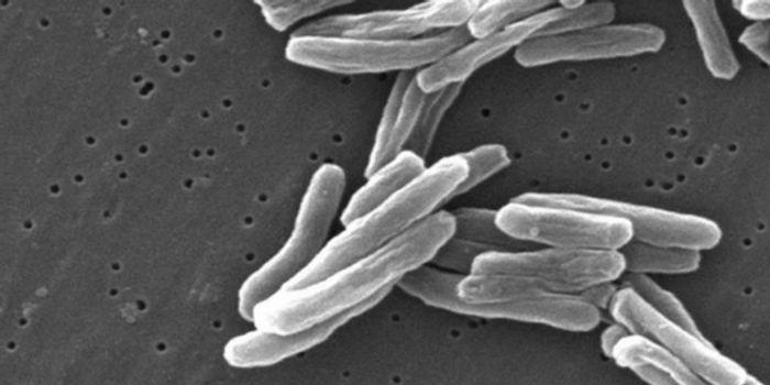 M. Tuberculosis | Image credit: Wikipedia.org
