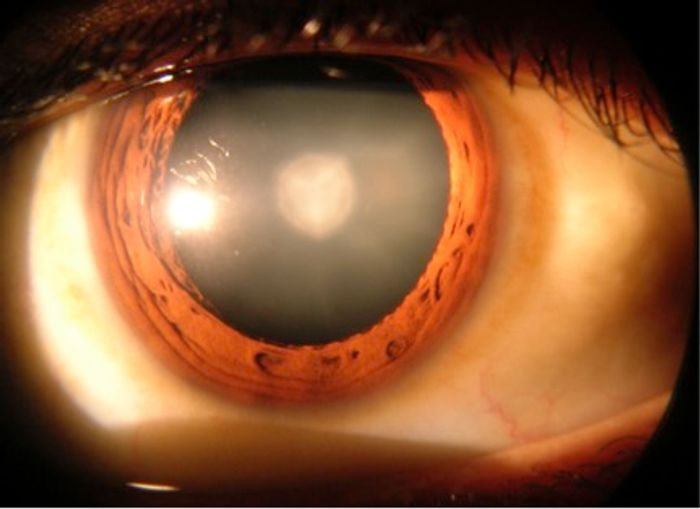 Protein buildups in the eye lens