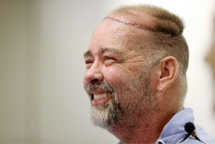 Texas man gets new skull-scalp transplant along with 2 organs