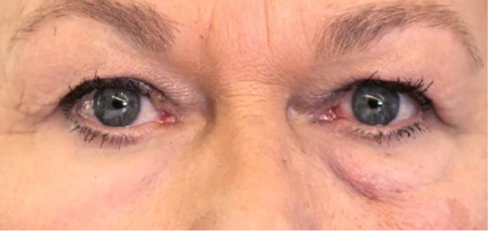 Left: skin treated XPL; Right: no treatment