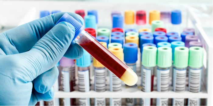 Will antibiotics cure your infection? A new blood test can tell | Image: SPL