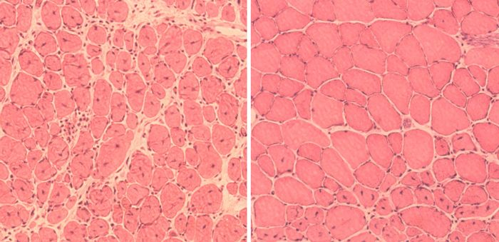 Left: untreated muscle cells; Right: muscle cells treated with 'reprogramming factors' | Image: Salk Institute