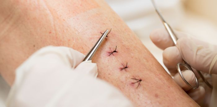 New suture threads can sense temperature, pH, and even glucose levels