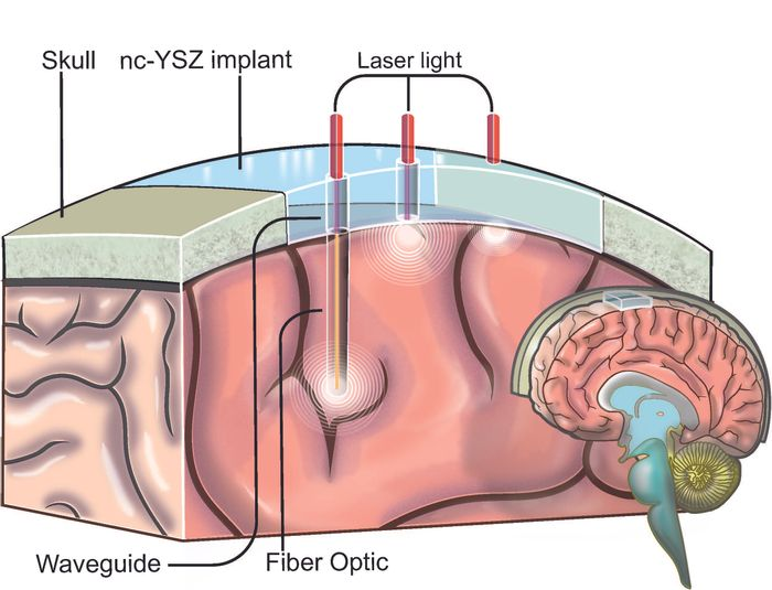 "A biocompatible ""window to the brain"" 