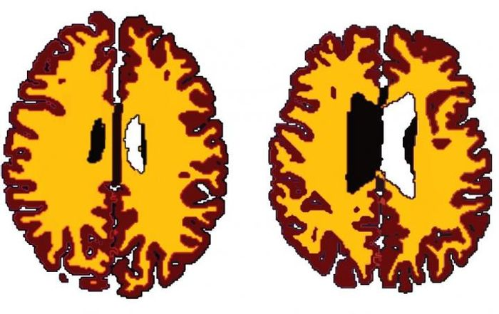 Brains of obese people 10 years older than lean counterparts | Image: Lisa Ronan