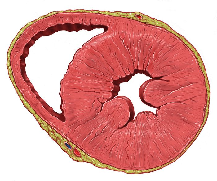 A heart with left ventricular hypertrophy in short-axis view.
