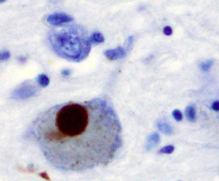 A lewy body stain showing Parkinson's Disease