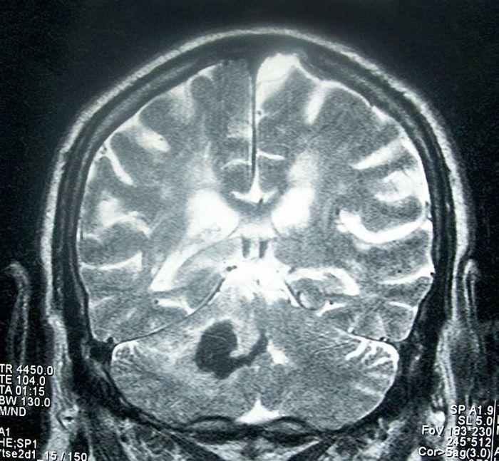 Head MRI showing deep intracerebral hemorrhage (cerebellum). Credit: WIkimedia User Bobjgalindo