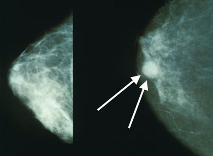 Normal (left) versus cancerous (right) mammography image.