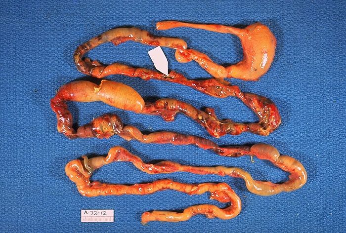 Intestines damaged by necrotizing enterocolitis.