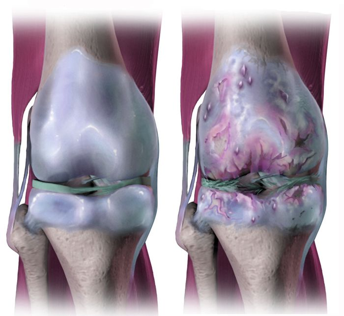 A rendering of a joint affected by osteoarthritis. Credit: Bruce Blaus
