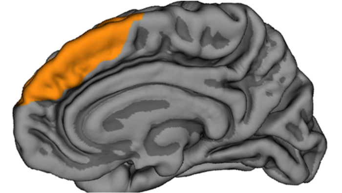 Location of the paracingulate sulcus (yellow) in the brain.