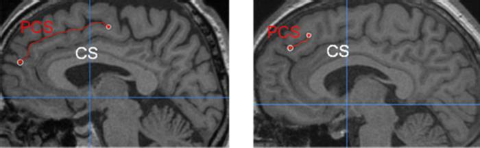 Different length of the paracingulate sulcus (PCS) relative to the corpus callosum (CS).