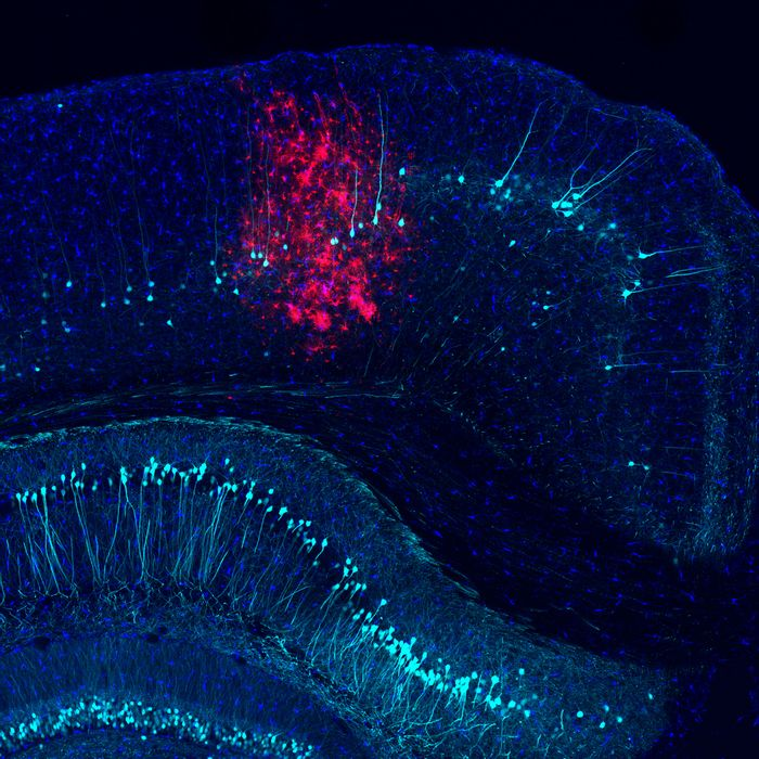In the cortex of a mouse, adenovirus-transduced cells (red) appear among labeled microglia (dark blue) and subsets of neurons (light blue) / Credit: Salk Institute