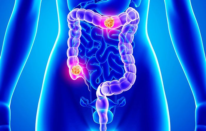 S. gallolyticus promotes colon cancer.