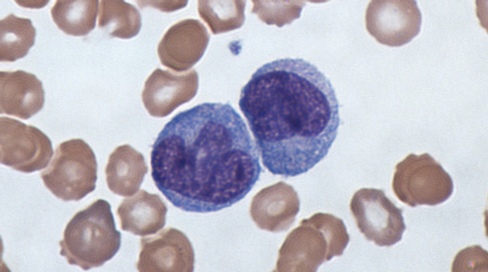 A micrograph of monocytes, the cell type used for this work. / Credit: Wikimedia Commons
