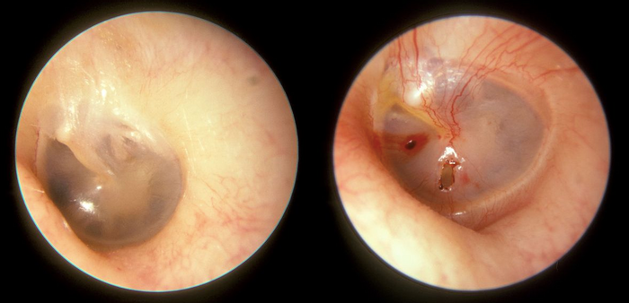 A normal tympanic membrane on the left, and one ruptured four days before the photos was taken on the right. / Credit: Wikimedia/Michael Hawke MD