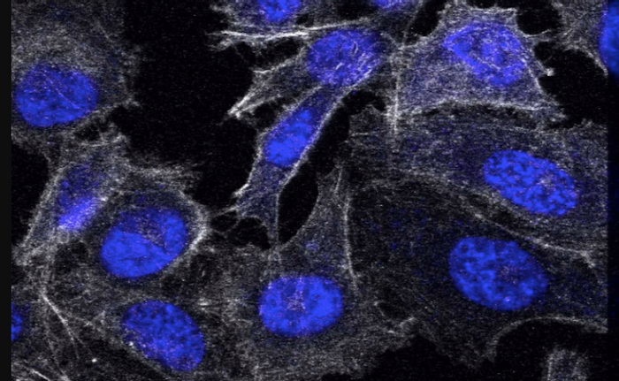 Prostate cancer cells, such as the ones in this image, might be targeted by these new molecular motors. / Credit: Wikimedia Commons/Griersonj5