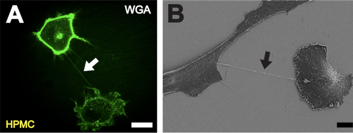 A. High resolution 3D live-cell fluorescence image of a nanotube (white arrow) connecting two primary mesothelial cells one hour after plating on a collagen I coated glass cover slide. To facilitate detection, cell membranes were stained. Scale bar: 20 µm. B Depiction of a NT (black arrow) between two cells with scanning electron microscopy one hour after cell plating. Scale bar: 10 µm. / Credit: Ranzinger J, Rustom A, Abel M, Leyh J, Kihm L, et al. - PLoS One