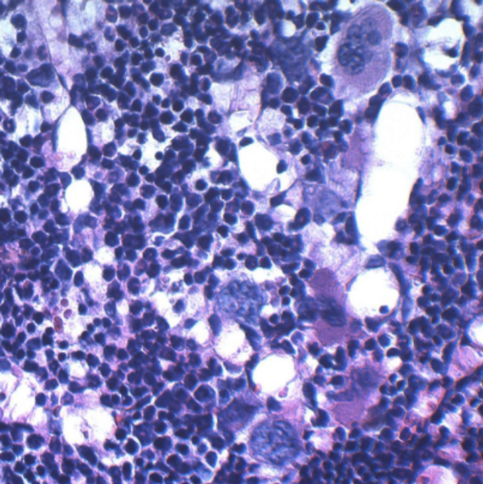 In this microscopic image, bone marrow cells from a genetically modified obese mouse exhibit diminished cellularity and altered composition./ Credit: Cincinnati Children's