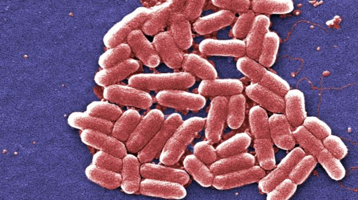 E. coli bacteria, one of the many strains commonly found in the human intestines. / Image credit: Pixnio