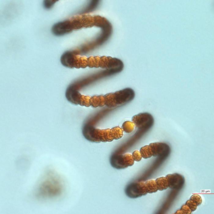 Microscope image of the nitrogen-fixing blue-green alga Anabaena crassa from the lake Müggelsee.  / Credit: Image: IGB
