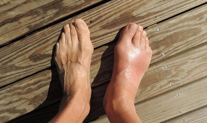 A case of gout / Image credit: Pixabay