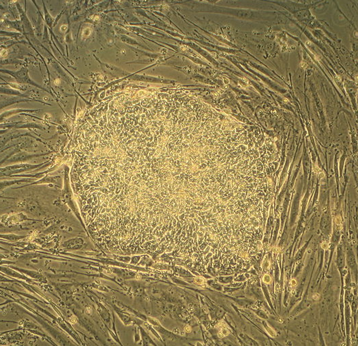 A colony of embryonic stem cells / Credit:Wikimedia Commons/ Ryddragyn