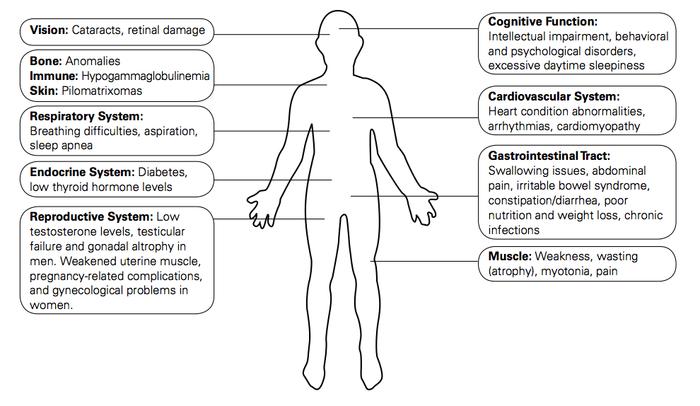 Symptoms of DM - via www.geneticdisorders.info
