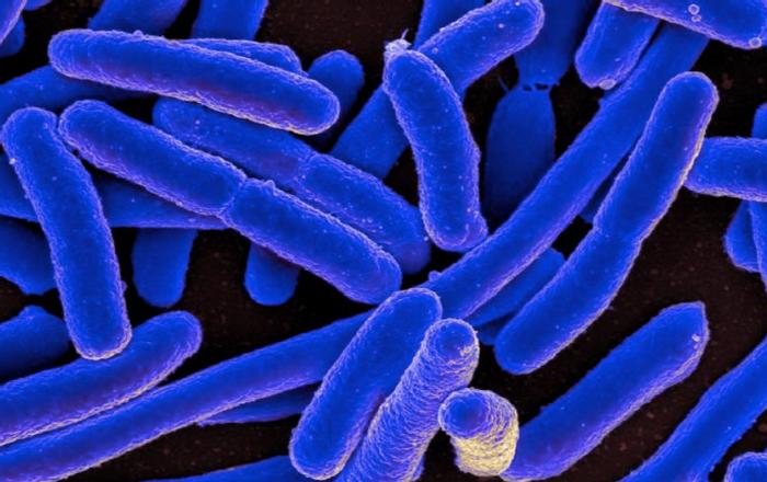 Escherichia coli / Credit: NIAID