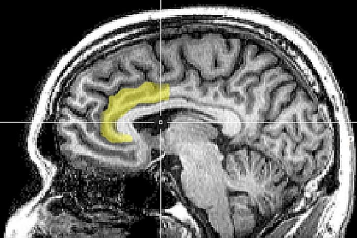 Stroke patients could benefit from virtual reality games
