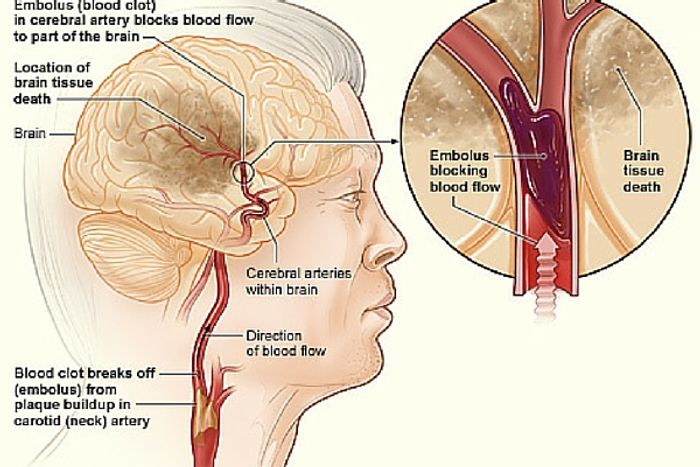 Time is crucial in getting treatment for a stroke