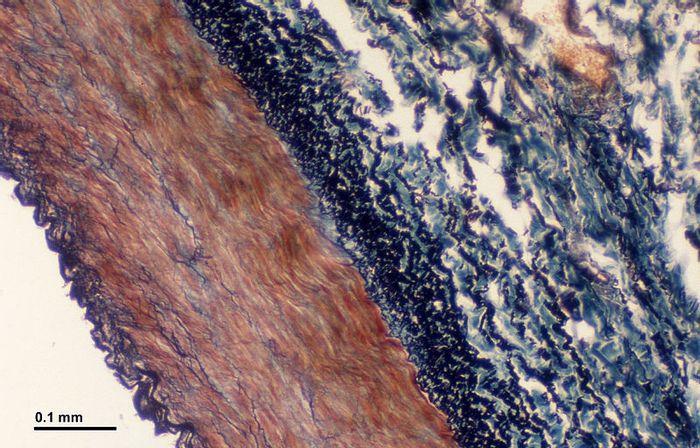 Cross section of a blood vessel. Source: Doc. RNDr. Josef Reischig, CSc