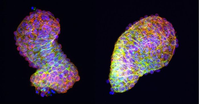 An explanted zebrafish heart loops on its own in a petri dish (left), but without the Frizzled-7a factor necessary for Planar Cell Polarity signaling, it remains tubular (right). Credit: Anne M. Merks, MDC