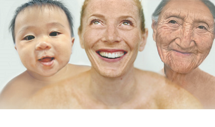 Accelerated ageing (AA) has been associated with obesity, Down's syndrome and HIV.