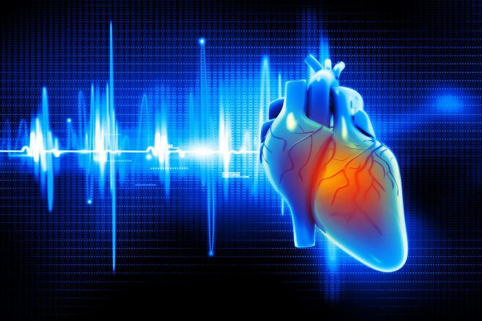 Researchers have identified a microRNA biomarker that demonstrates a strong association with the incidence of atrial fibrillation, the most common abnormal heart rhythm. Intermountain Medical Center Heart Institute