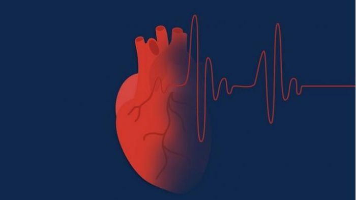 Anticoagulant therapy is important for stroke prevention in people with atrial fibrillation, but many people don't stick with it. Photo Credit: University of Michigan Health System