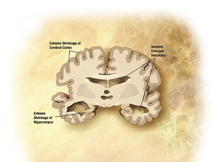Areas of the brain impacted by Alzheimer's Disease