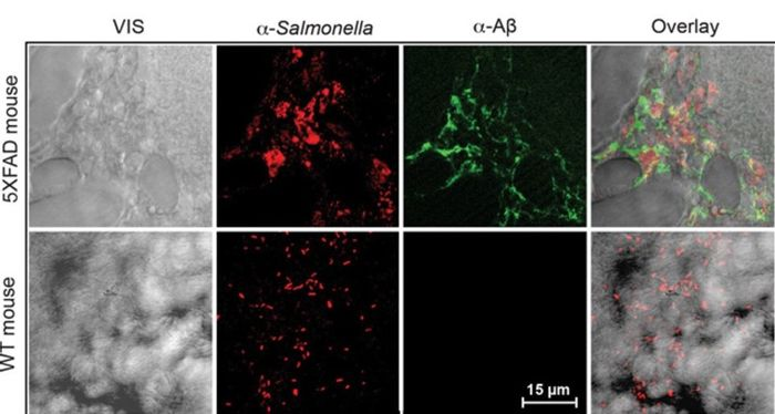 Infection-induced ?-amyloid deposits colocalize with Salmonella in AD mouse brain.
