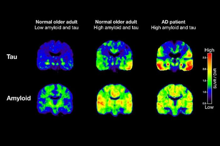 Brain scans showing amyloid and tau deposits