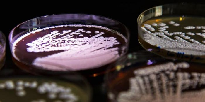 Actinomycetes is in a plate. / Credit: DTU/DTU Biosustain