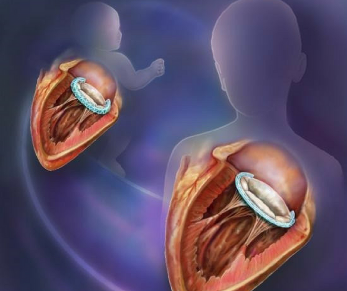 A new growth-accommodating medical implant could reduce the amount of invasive surgeries needed to mend heart defects. Credit: Randal McKenzie, BWH
