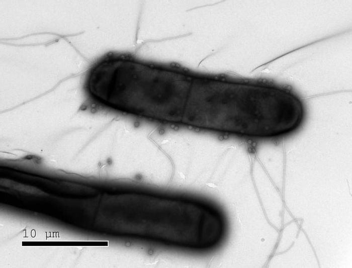 Bacteria like these have numerous defenses against the phages (dots) that infect them. / Credit: Weizmann Institute of Science