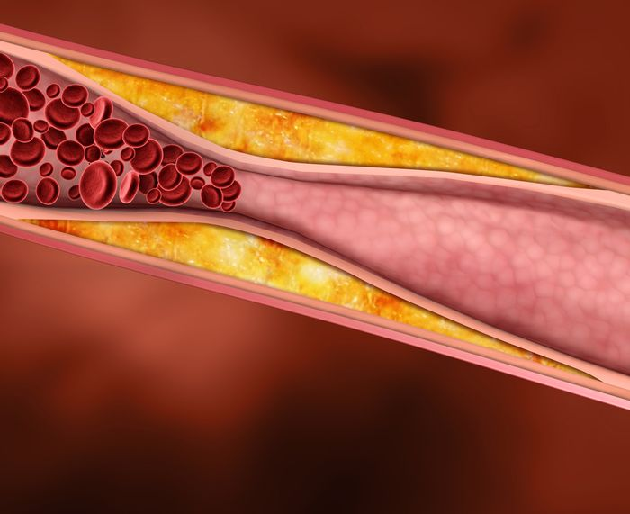 A blocked artery. | Credit: Vascular Institute of Michigan
