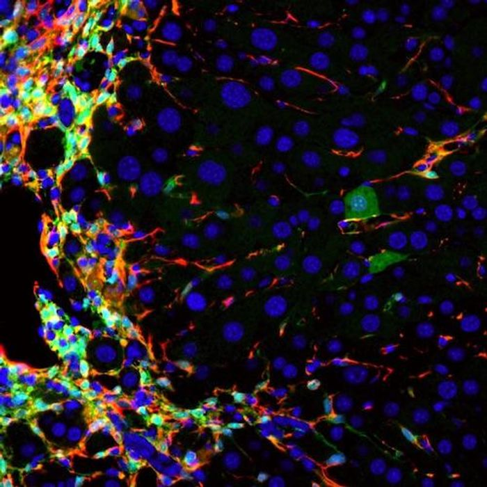 UCSF researchers have learned to generate healthy new liver cells (dark green, right side) within the livers of living mice by converting the very cells that drive liver disease (red, left side), thereby reducing liver damage and improving liver function at the same time. Image: Willenbring lab / UCSF